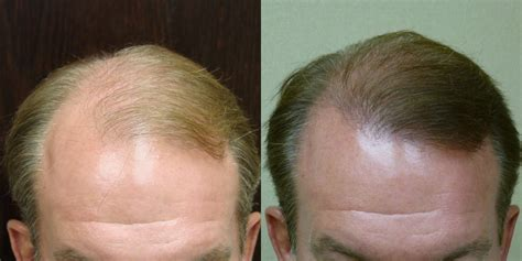 faq main hair loss hair transplant and restoration hair loss answers to frequently asked questions hair