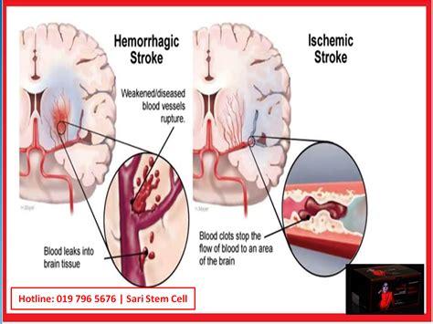 a stroke stroke www imgkid the image kid has it