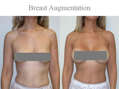 With The Breast Implants by Silicone Implants Looking Feels 174