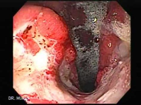 stomach tumor stomach cancer facts information pictures encyclopedia articles about stomach