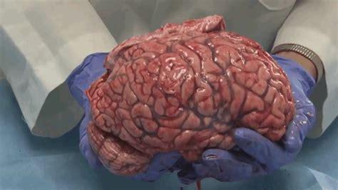 imagenes de el cerebro humano este es el aspecto de un cerebro humano reci 233 n extra 237 do en