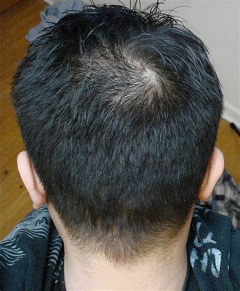 haircut for thinning crown 1 year before surgery