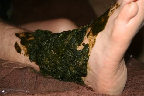 how do i my to heel how to use comfrey to heal broken bones