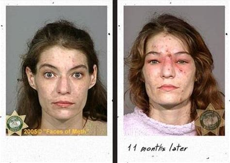 Detox From Meth Use physical the about methhetamine