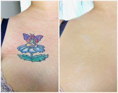 tattoo cover up veil 1000 images about skin camouflage before and after on