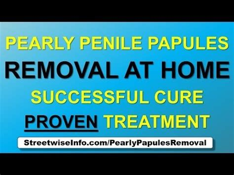 Pearly Penile Papules Removal At Home by Pearly Penile Papules Removal Remove Pearly Penile