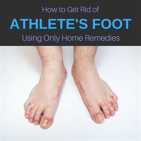 how do you get athletes foot out of shoes 25 b 228 sta foot remedies id 233 erna p 229 reflexologi