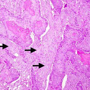 grupos ganglionares de cuello grupos ganglionares del sistema linfatico del cuello