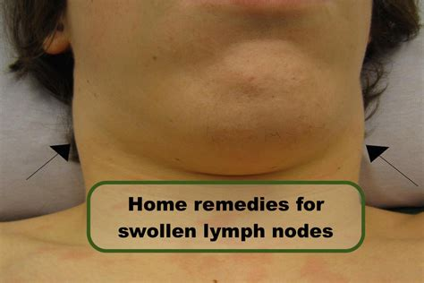 home remedies for swollen lymph nodes swollen lymph