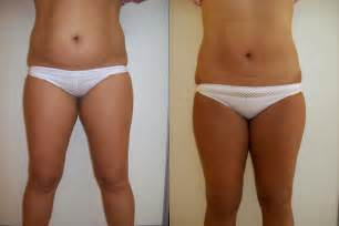 exposing liposuction is it safe