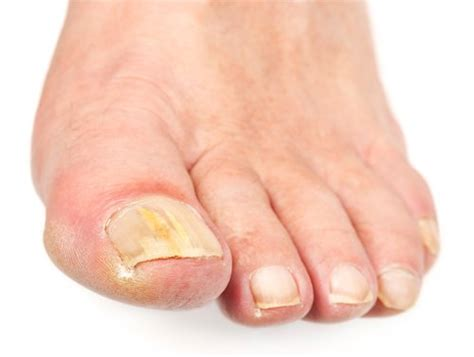 Several Toenails Look Skin Color Under Them | home remedies for toenail fungus powerful and effective