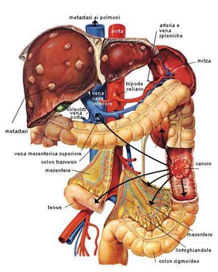 dolore gabbia toracica destra i marcatori tumorali carcinomaepatico it