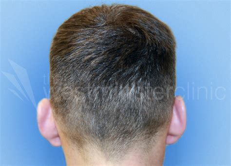 fue hair transplant westminister clinic fue hair transplant westminster clinic