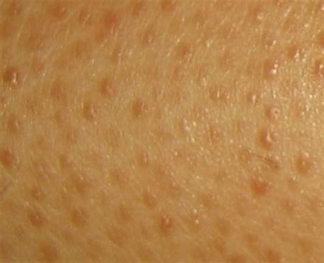 lump s skin that leg rash pictures