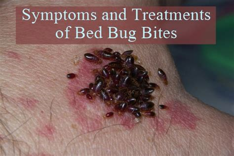 treatment of bed bug bites treatment of bed bug bites bug bite identification and