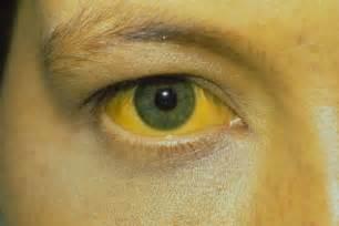 identifying hepatitis infection