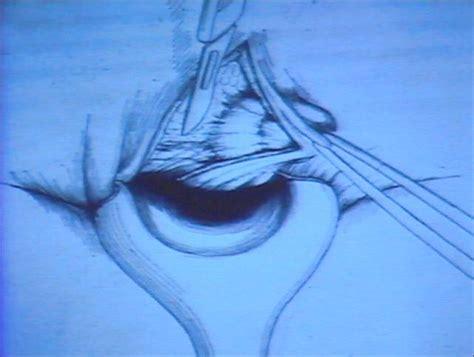 gavocciolo emorroidario interno gavocciolo emorroidario interno 24 images studio