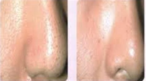 Treatment Laser Pores enlarged pores treatment at anti aging clinic toronto
