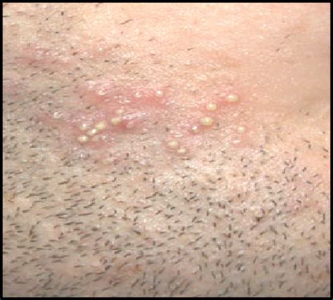 hair bumps on private area image gallery mrsa blisters