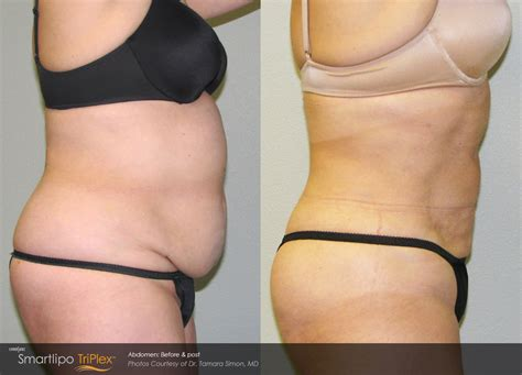 Detox After Smart Lipo by Smartlipo Triplex Can Target The Jowls Neck Thighs