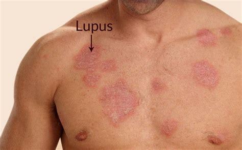 systemic lupus erythematosus images