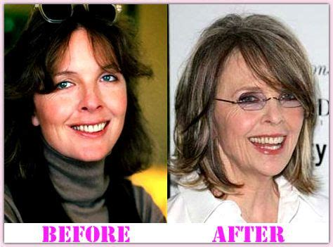 Diane Is Terrified Of Plastic Surgery by 22 Best Images About Plastic Surgery Before And After On