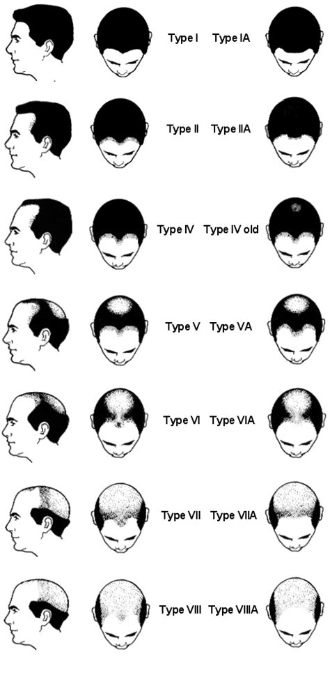 male pattern baldness types male and female pattern baldness information