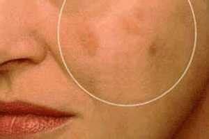 imagenes de manchas oscuras en la cara remedios para quitar manchas oscuras en la piel