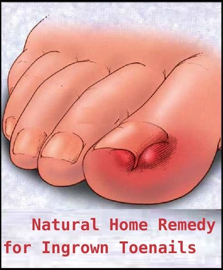 how to stop white on tongue 600 home remedies for ingrown