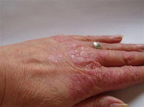 is pic psoriasis the skin what condition new psoriasis psoriatic arthritis skin pictures dorothee padraig south