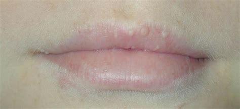 bolle sulle labbra interne pimple sul labbro qual 232 la causa problema e come