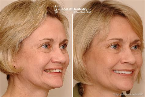 Next Facelift For Your Teeth 2 by The Non Surgical Lift That Works