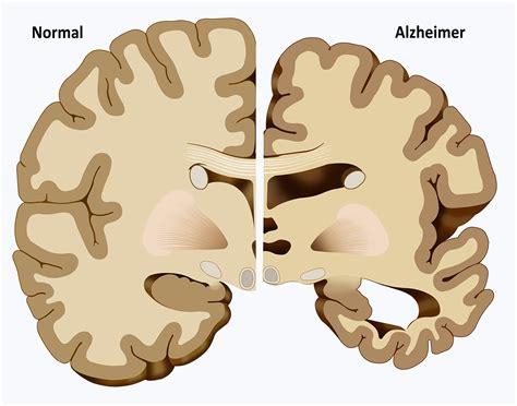 test alzaimer les 5 avantages du cannabis pour alzheimer