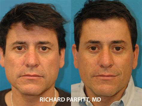 forehead surgery before and after forehead lift parfitt facial plastic surgery center