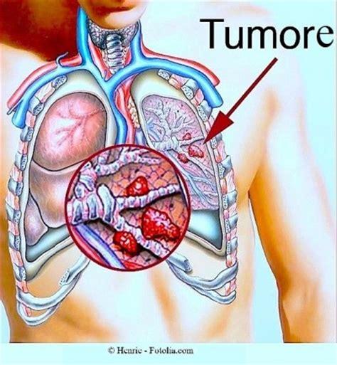 dolore gabbia toracica sinistra tumore al polmone sintomi metastasi cure e sopravvivenza