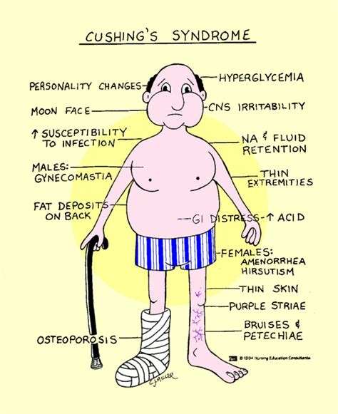 cushings syndrome wikipedia the free encyclopedia cushing syndrome newhairstylesformen2014 com
