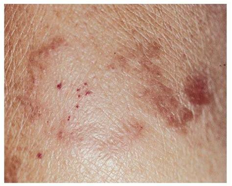 leprosy skin lesions images leprosy