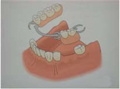 protesi dentarie parziali mobili protesi e impianti dentali dentista