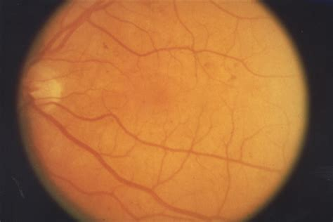 background diabetic retinopathy mild background diabetic retinopathy retina of new