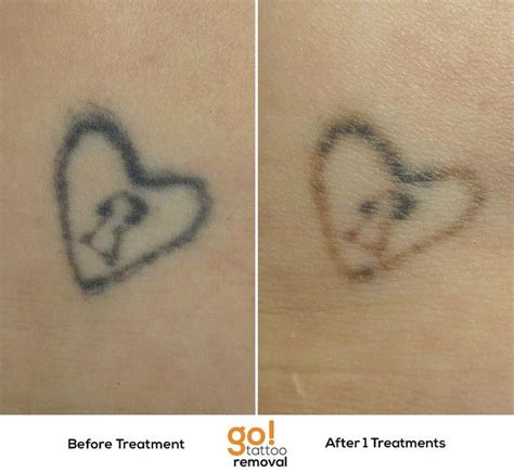 tattoo blowout removal 701 best images about removal in progress on