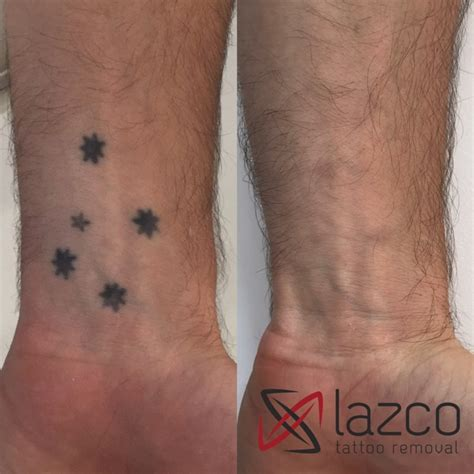 tattoo laser removal brisbane brisbane laser removal clinic lazco removal