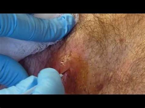 infected tattoo real or fake cystbursting com image gallery huge abscess