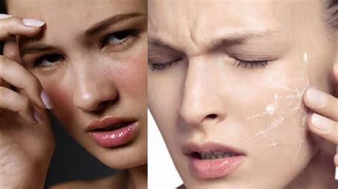 produk membuat wajah glowing mengatasi kulit wajah mengelupas setelah memakai cream