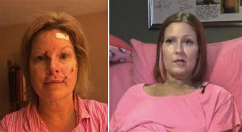 tanning bed skin cancer woman s dying wish is to warn everyone about the deadly