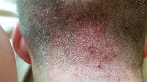 foruncoli in testa scalp acne folliculitis pictures general acne