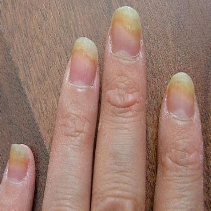 Images Of Fingernail Fungus