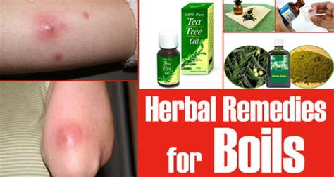 15 Herbal Remedies for Boils How To Treat Boils On Buttocks At Home