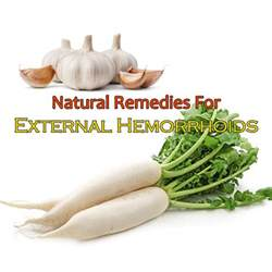 hemorrhoid home remedy 5 remedies for external hemorrhoids you can try at