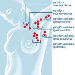 biopsie du ganglion lymphatique sentinelle constellation