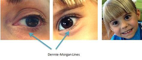 dennie fold dennie lines allergic wrinkles bon secours 757